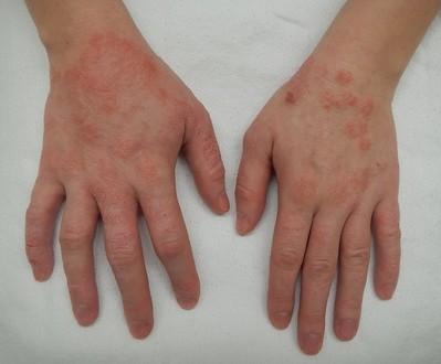 Latex glove hand rash cure