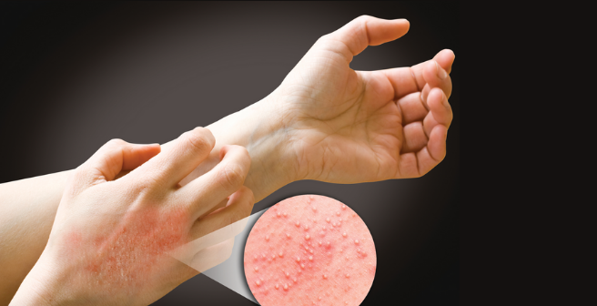 Contact Dermatitis, Chemical and Latex Allergies